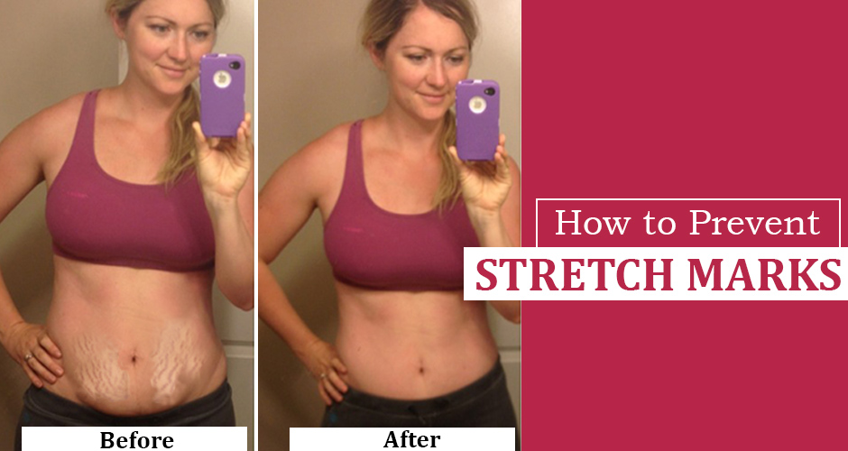 3 Most Effective ways to Prevent Stretch Marks