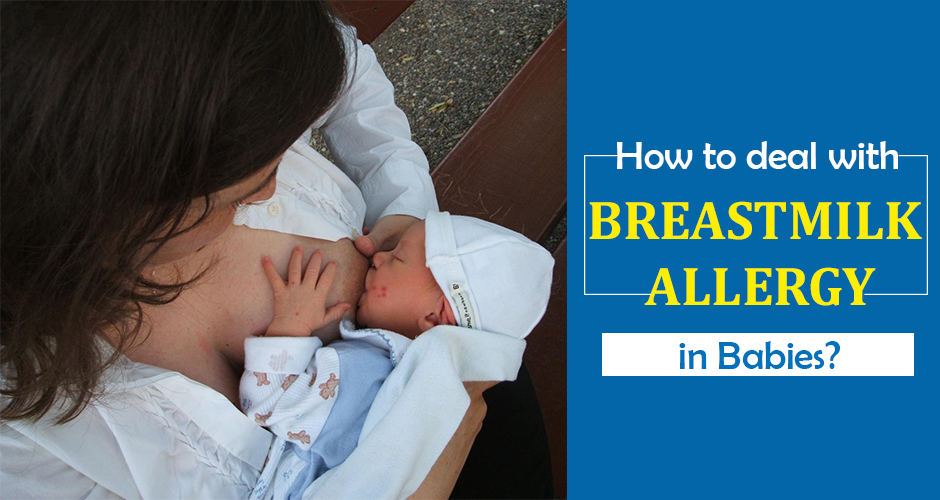 How To Identify And Deal With Breast Milk Allergy In Babies
