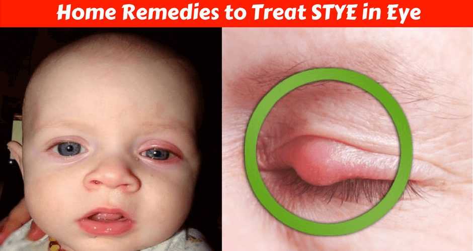 5 Home Remedies For Treating Stye In Your Baby S Eye