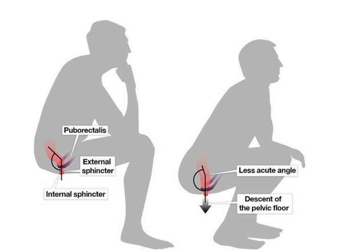 which position is right?