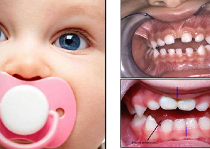 teeth problem