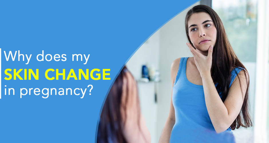 Why does my skin change in pregnancy?