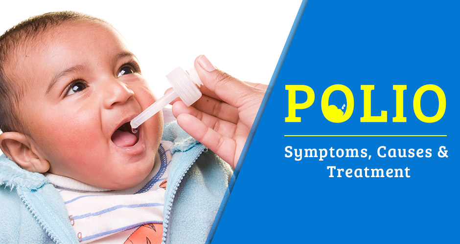 Polio: Symptoms, Causes and Treatment (Can my baby get polio even after getting its vaccination?)
