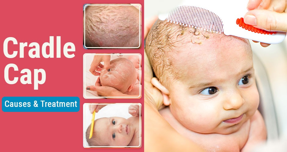 What is Cradle Cap in Babies? All that you need to know about it