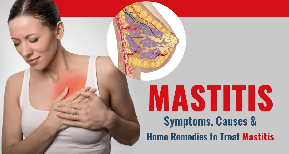 Mastitis: Symptoms, Causes, and Home Remedies to Treat Mastitis
