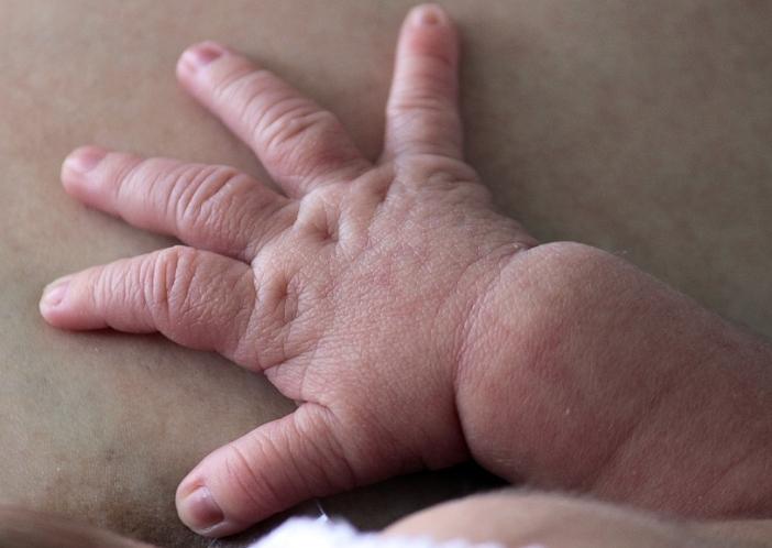 babies dry skin