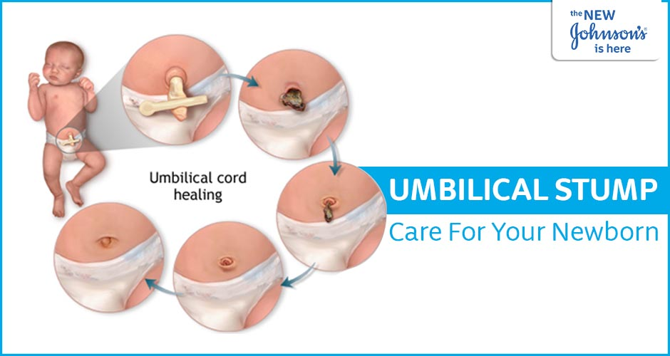 How To Take Care Of Your Newborn's Umbilical Stump