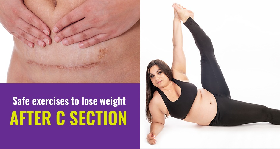 Safe And Simple Exercises To Lose Weight After A C Section