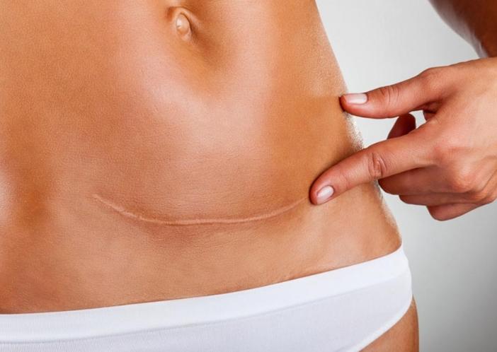 cesarean complications