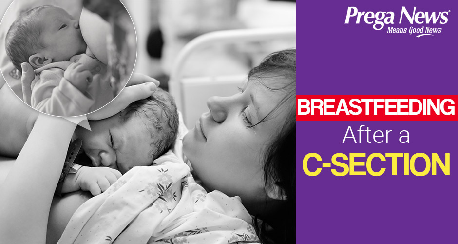 Does a C-Section affect breastfeeding?