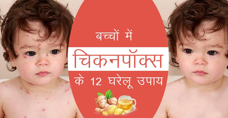बच्चों में चिकनपॉक्स के 12 घरेलू उपाय