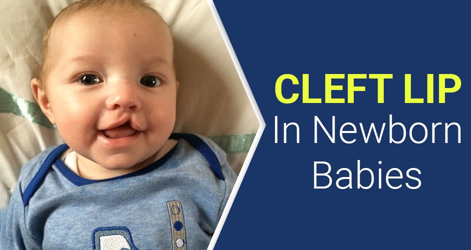 Everything You Need To Know About Cleft Lip In Newborn Babies